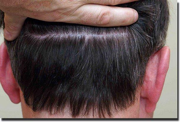 hair_bonding_cosmetic