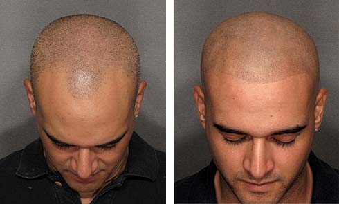 pigmentation_scalp_therapy