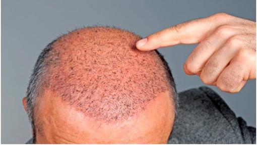 platelet_rich_therapy_hair_loss